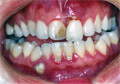 Before Gum treatment