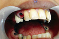 Before  treatment dental