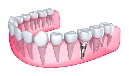 dental implant closeup image